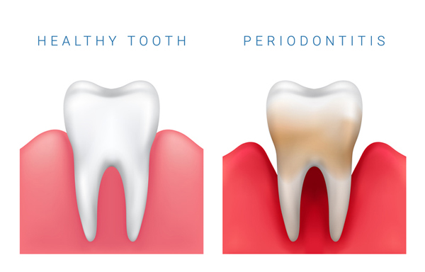 Types of Periodontal Services to Ask Us About