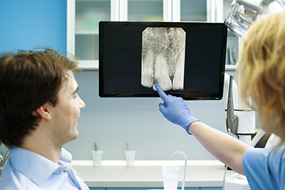 Digital X-rays are offered at Clackamas Implant & Oral Surgery Center